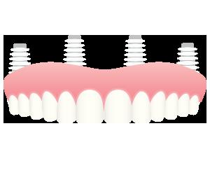 replacing-a-few-teeth